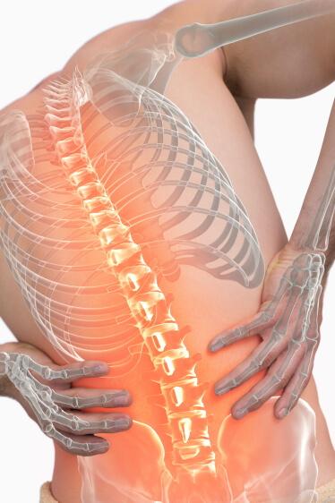 brennender - Rückenschmerz