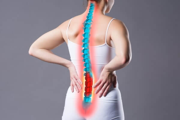 stichartige Rückenschmerzen - Bandscheibenvorfall