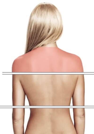 Schmerzen im oberen Rückenbereich